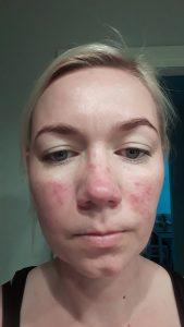 Ruusufinnin hoito kosmetologilla